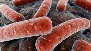 tuberculosis-02